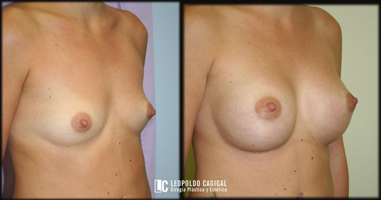 Leopoldo Cagigal - aumento de senos