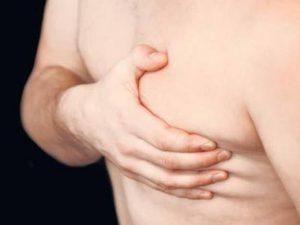 reducción mamas en hombres