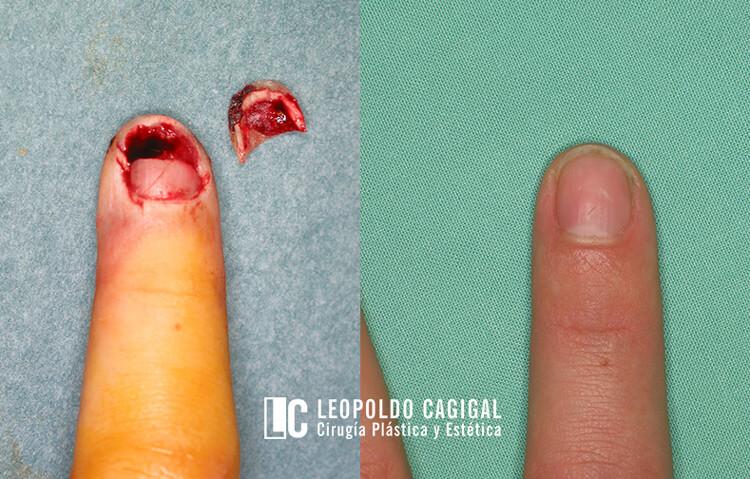 cirugia-de-la-mano-injerto-una2