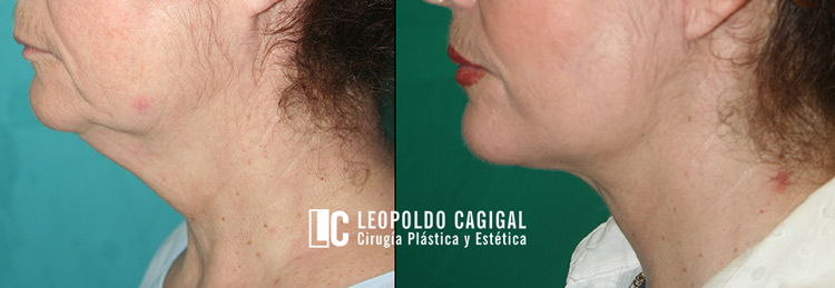 lifting-cervicofacial-antes-y-despues