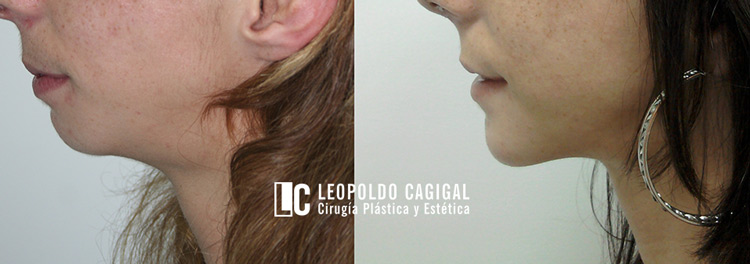mentoplastia-antes-y-despues-2