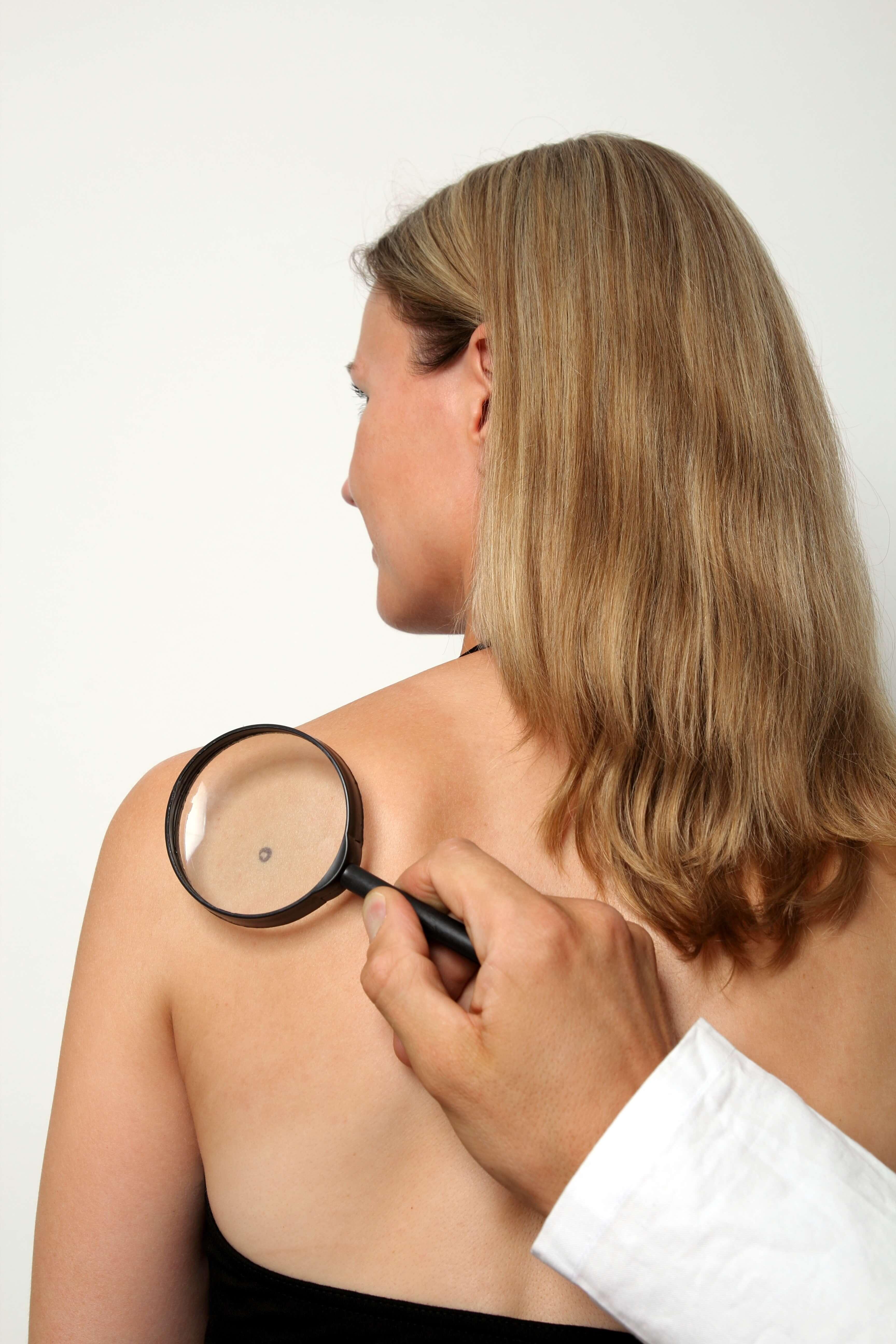 La prevención, nuestro mejor aliado contra el cáncer de piel Dr. Leopoldo Cagigal - Cirugía plástica y estética 2