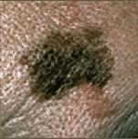 D. Diámetro: El diámetro del lunar suele ser superior a 6 mm (aproximadamente del tamaño de la goma de borrar de un lápiz), salvo que se detecte de forma precoz.