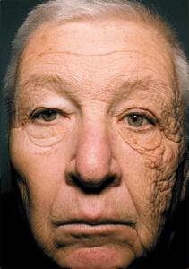 envejecimiento piel sol