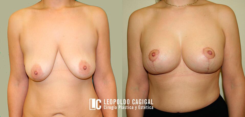 mastopexia fotos frontal - Clínica Cagigal
