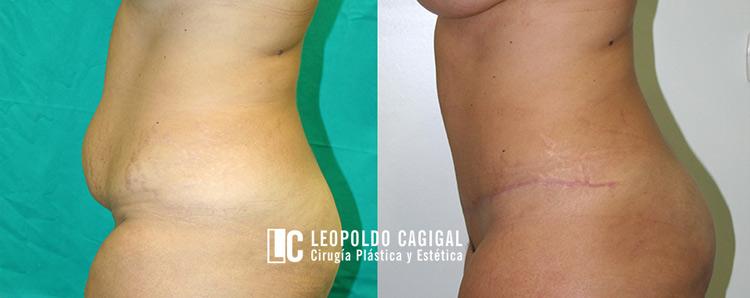 fotos antes y después abdominoplastia Málaga