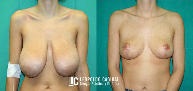Mamoplastia de reducción en Málaga - Foto resultados reducción de pecho