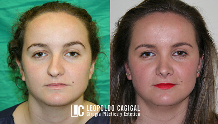 Resultados fotos antes y después de rinoplastia - Clínica Cagigal en Málaga