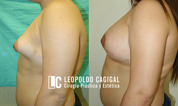Mamoplastia de aumento en Málaga - Foto perfil resultados mamas tuberosas