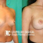 Resultados fotos oblicuo antes y después de aumento de senos