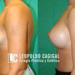 Resultados fotos antes y después de aumento de senos