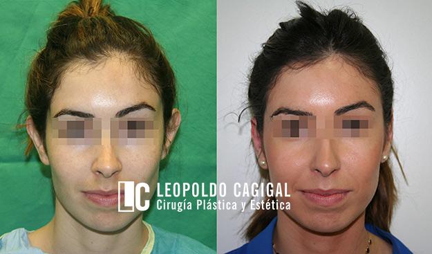 fotos antes y después de otoplastia
