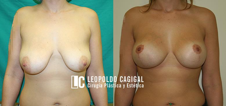 fotos antes y después de aumento de senos en Málaga