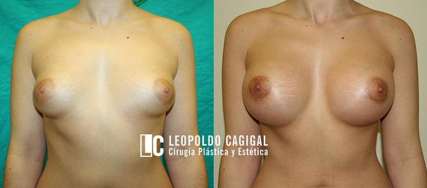 fotos antes y después de intervención de mamas tuberosas en Málaga