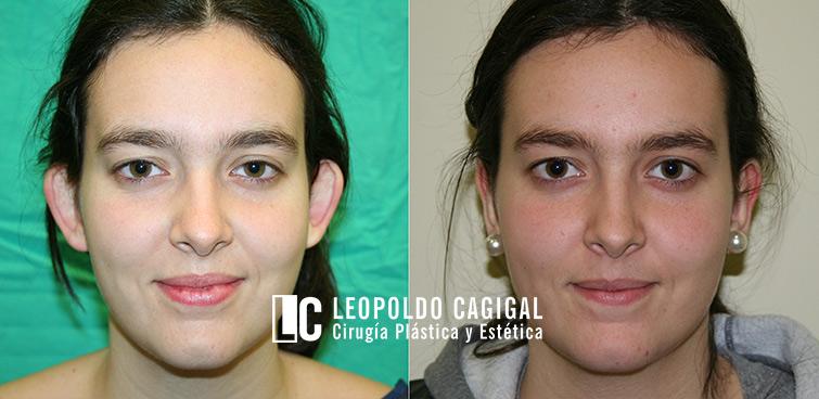 Foto resultado otoplastia - Dr. cagigal
