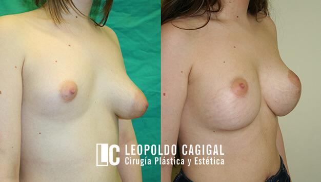 asimetría de mamas fotos oblicuo perfil resultados