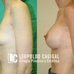 Mamoplastia de aumento - Dr Cagigal - Foto resultados aumento pecho perfil