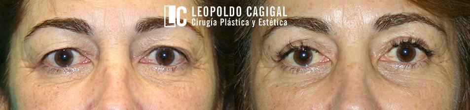 Blefaroplastia - cirugía de párpados - Foto antes y después