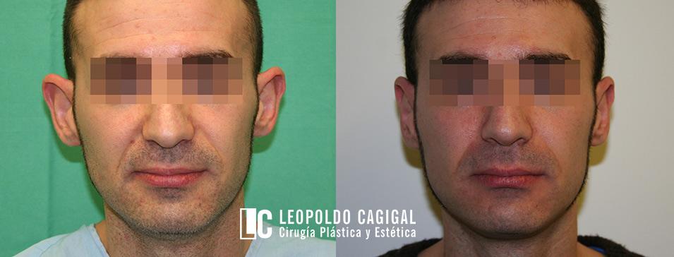 Fotos de antes y después de una otoplastia - Clínica Cagigal en Málaga