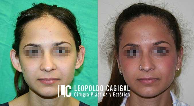 fotos antes y después otoplastia Málaga