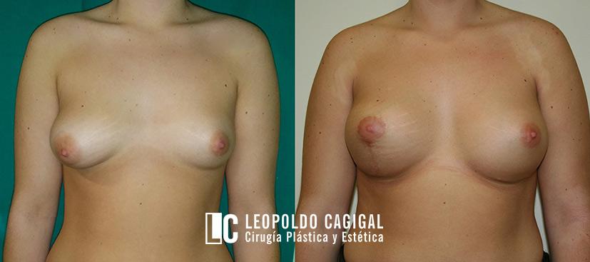 asimetría mamaria fotos resultados