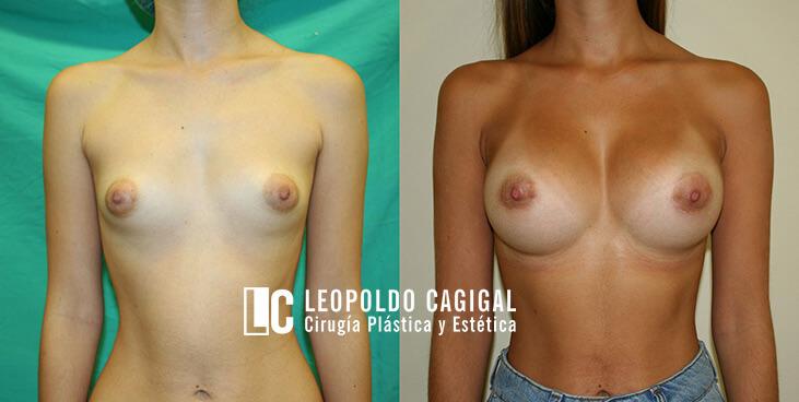 fotos antes y después mamas tuberosas - Clínica Estética Málaga