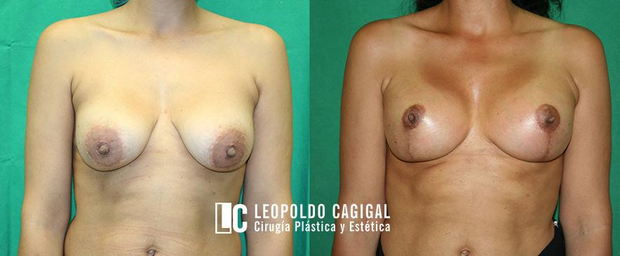 fotos antes y después mastopexia Málaga
