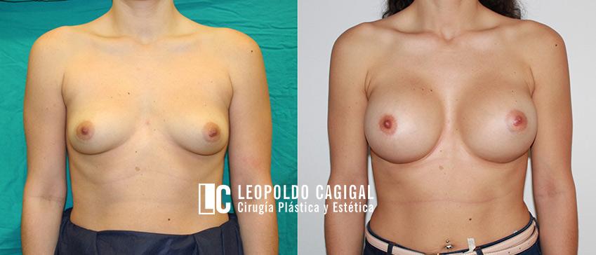 aumento de pechos foto resultados Leopoldo Cagigal