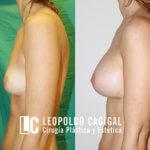 aumento de pecho Málaga fotos resultado perfil