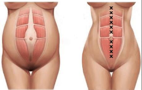 cirugia diastasis rectos abdominales