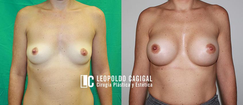 fotos frontal aumento mamario