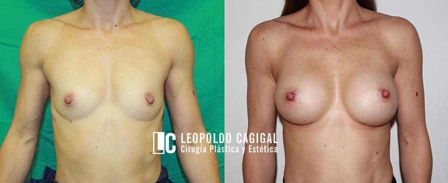 Fotos resultados mamoplastia de aumento