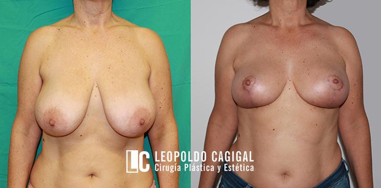 Antes y después de una reducción de mama